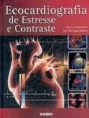 ECOCARDIOGRAFIA DE ESTRESSE E CONTRASTE