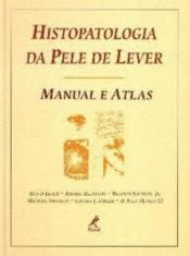 HISTOPATOLOGIA DA PELE DE LEVER