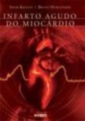 INFARTO AGUDO DO MIOCARDIO