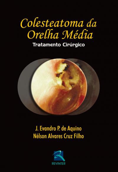 COLESTEATOMA DA ORELHA MÉDIA-TRAT.CIRÚRGICO
