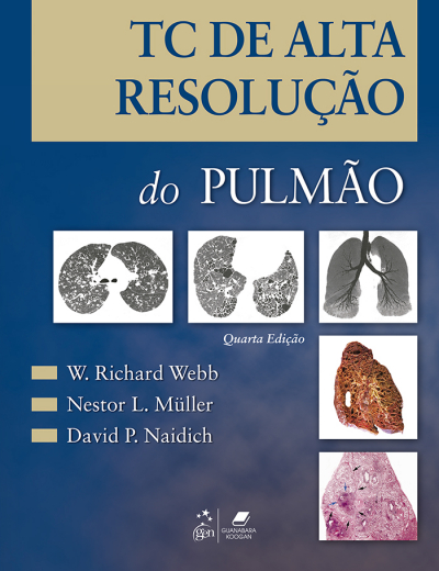TC DE ALTA DE RESOLUCAO DO PULMAO - 4